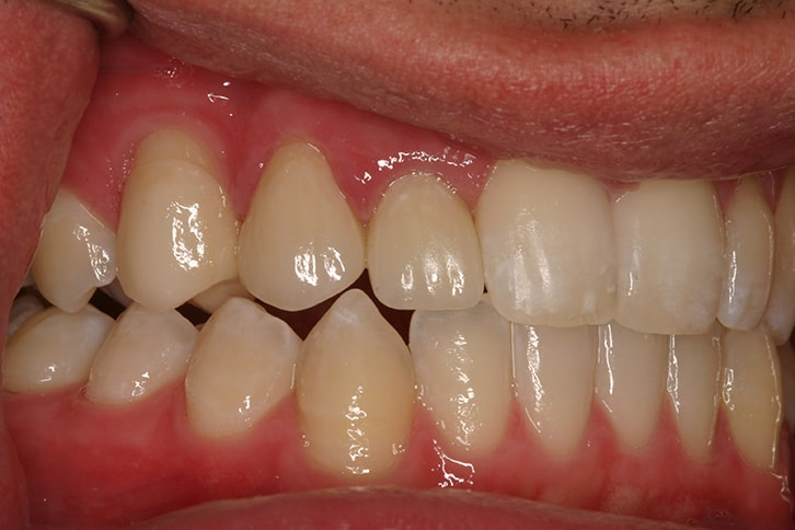 dental implants reviews in Sevierville